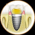 implant2_kicsi