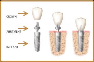 korona, implant